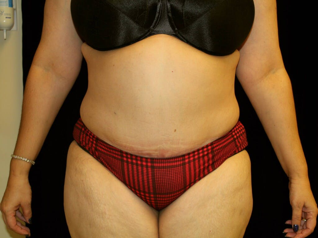 Tummy Tuck Gallery - Patient 39217682 - Image 2