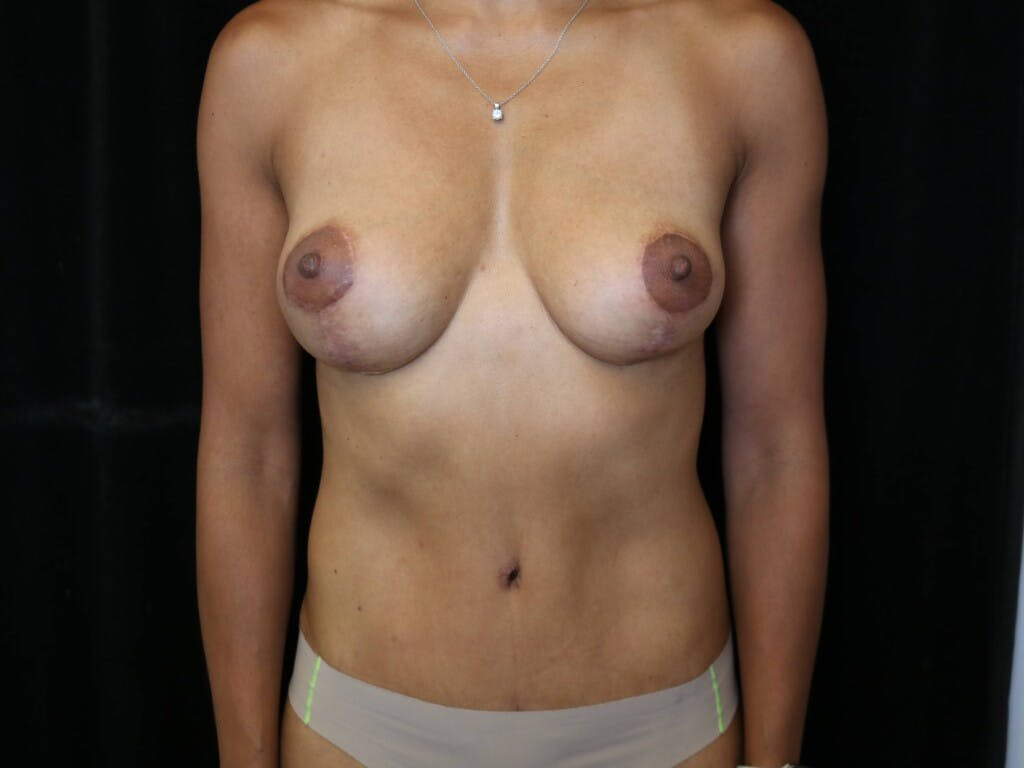 Mommy Makeover Gallery - Patient 39217688 - Image 2
