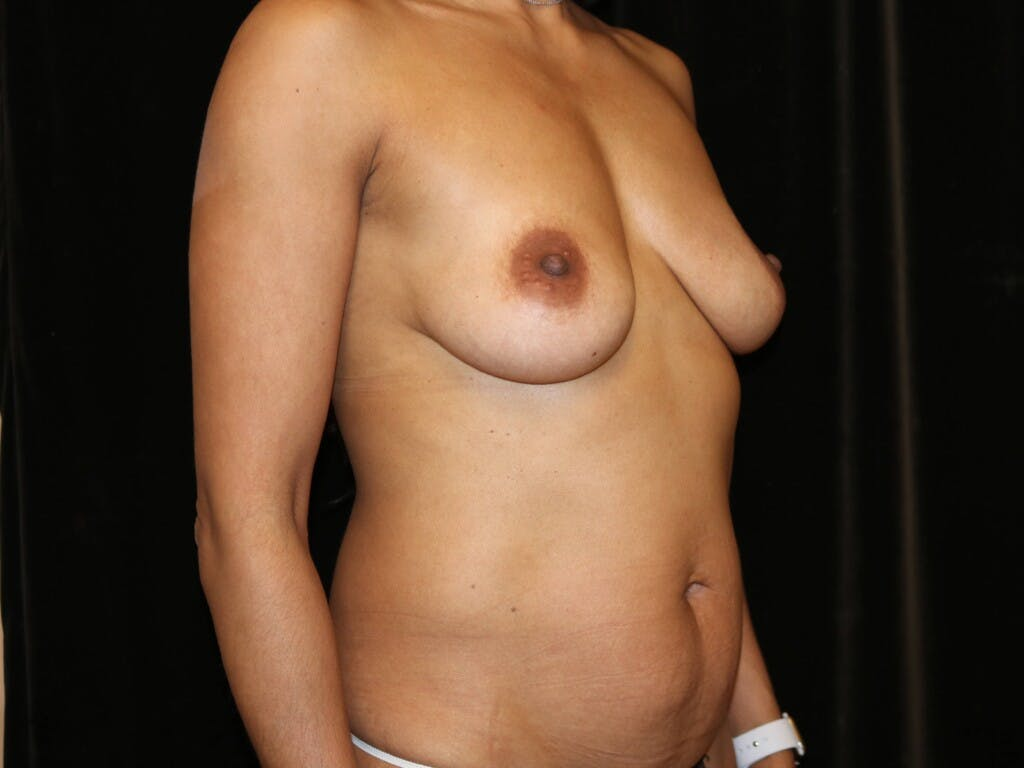 Mommy Makeover Gallery - Patient 39217688 - Image 3