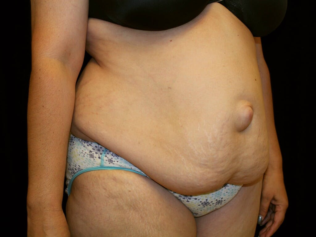 Tummy Tuck Gallery - Patient 39217682 - Image 3