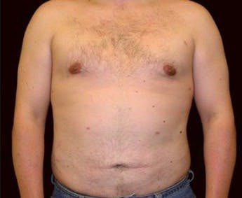 Liposuction Gallery - Patient 39217680 - Image 2