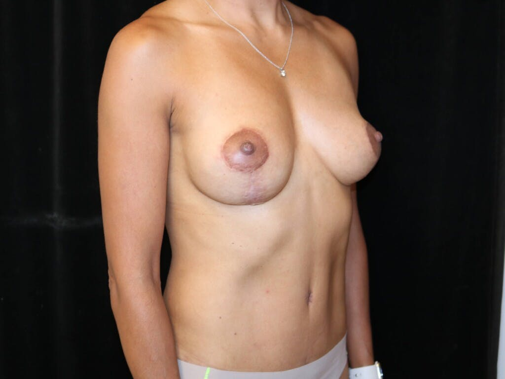Mommy Makeover Gallery - Patient 39217688 - Image 4