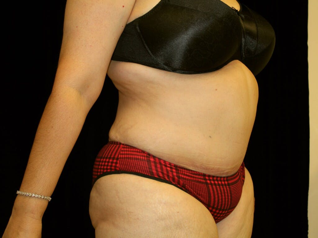 Tummy Tuck Gallery - Patient 39217682 - Image 4