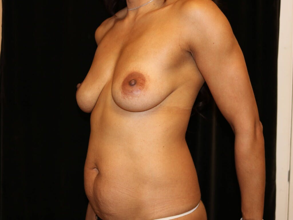 Mommy Makeover Gallery - Patient 39217688 - Image 5