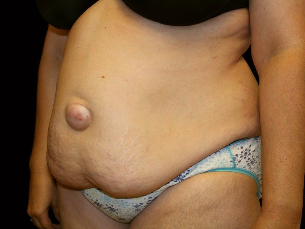 Tummy Tuck Gallery - Patient 39217682 - Image 5