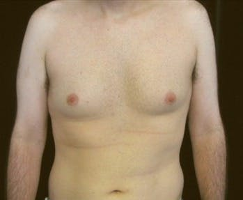 Liposuction Gallery - Patient 39217683 - Image 1