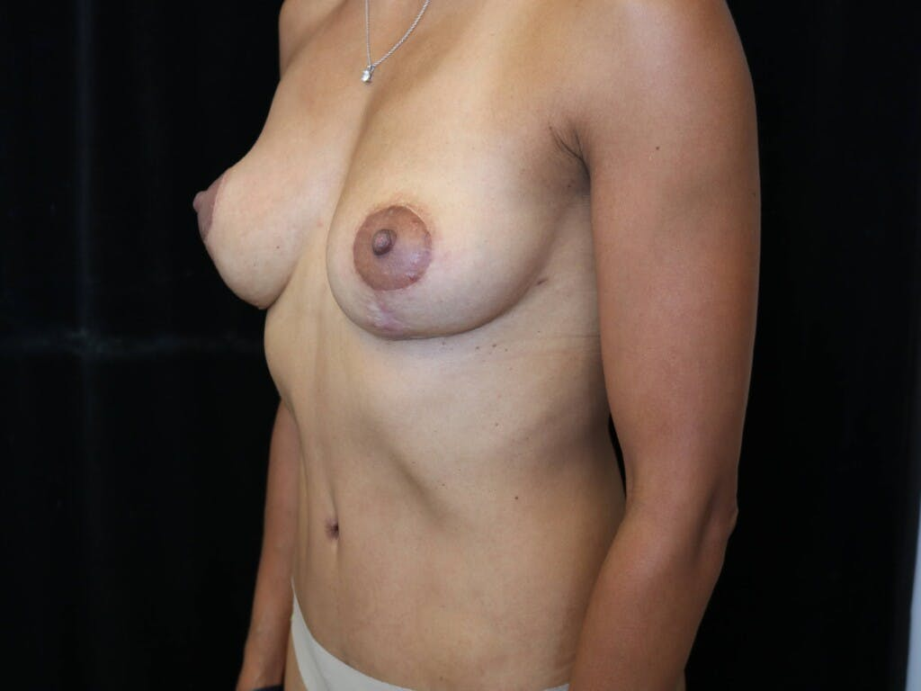 Mommy Makeover Gallery - Patient 39217688 - Image 6