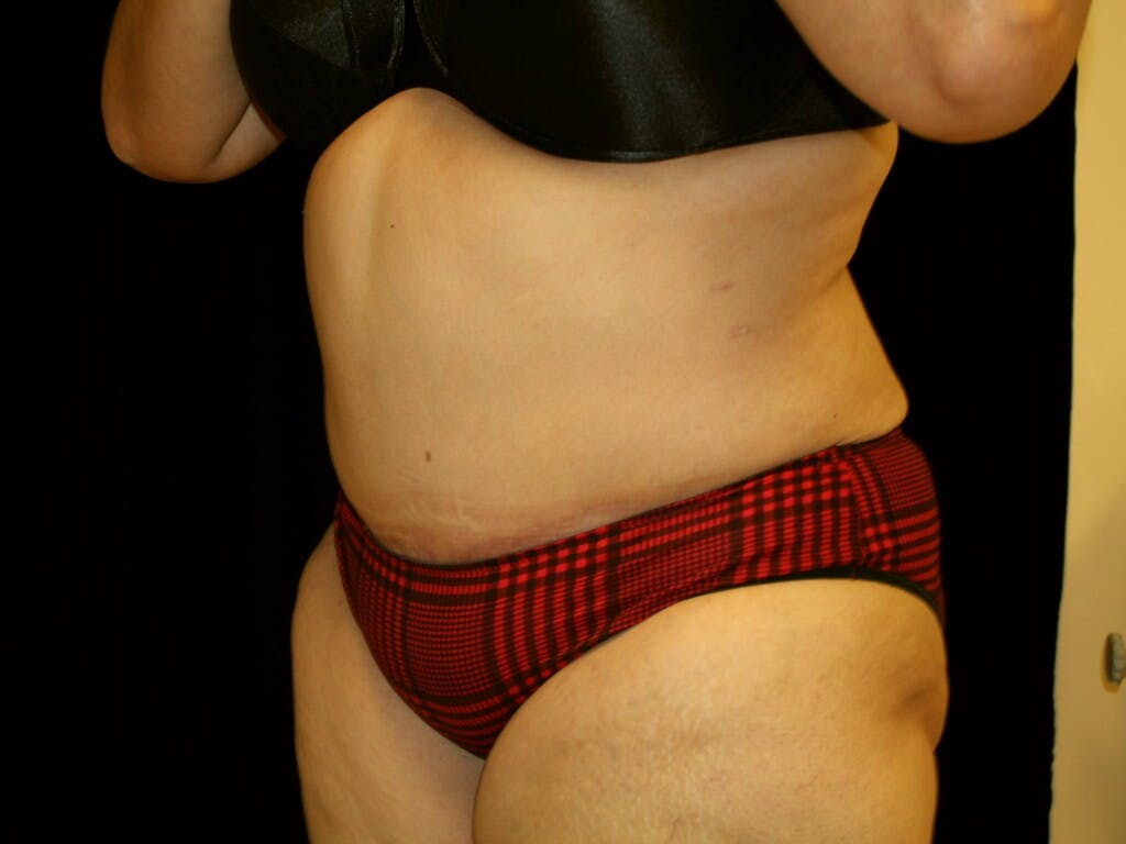 Tummy Tuck Gallery - Patient 39217682 - Image 6