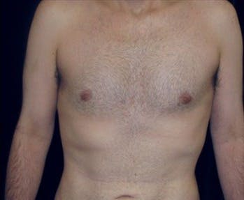 Liposuction Gallery - Patient 39217683 - Image 2