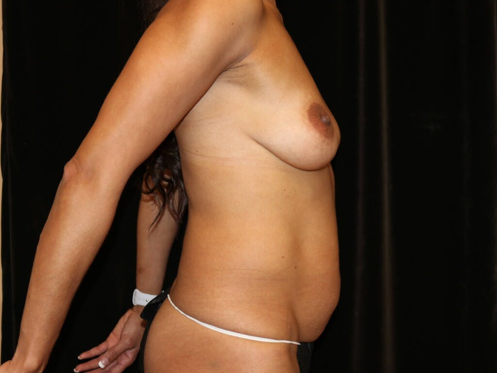 Mommy Makeover Gallery - Patient 39217688 - Image 7