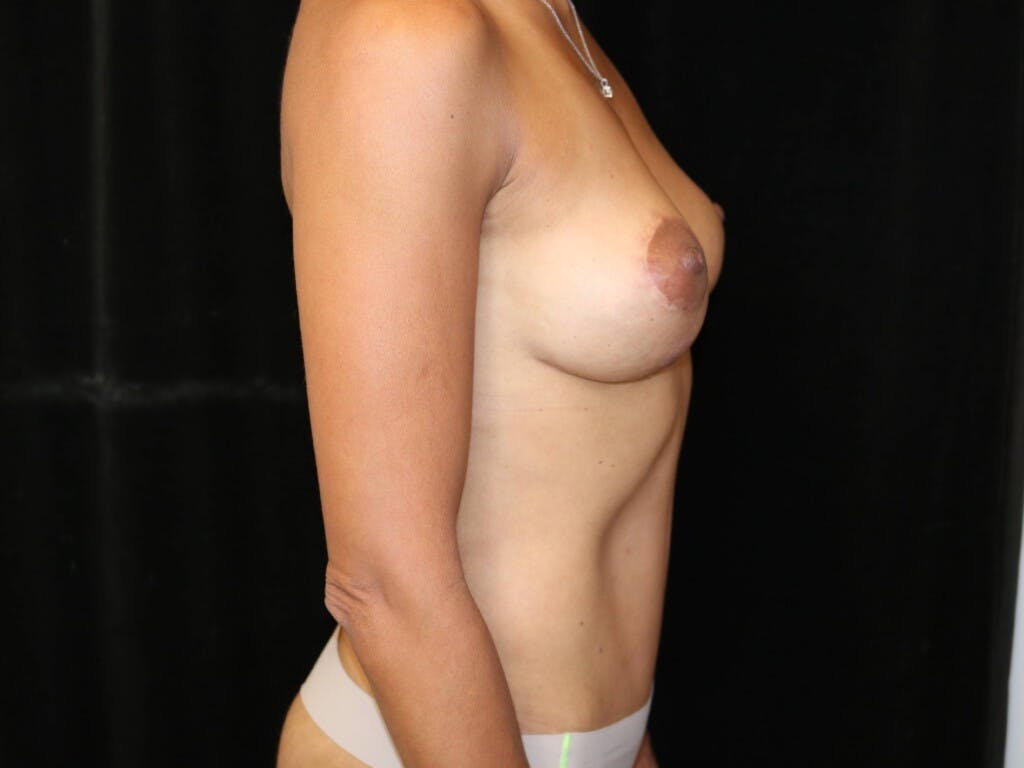 Mommy Makeover Gallery - Patient 39217688 - Image 8