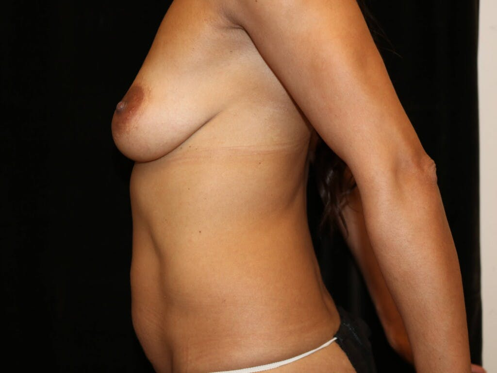 Mommy Makeover Gallery - Patient 39217688 - Image 9