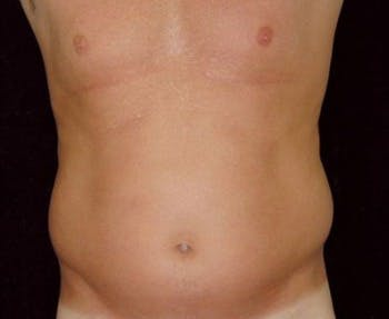 Liposuction Gallery - Patient 39217687 - Image 1