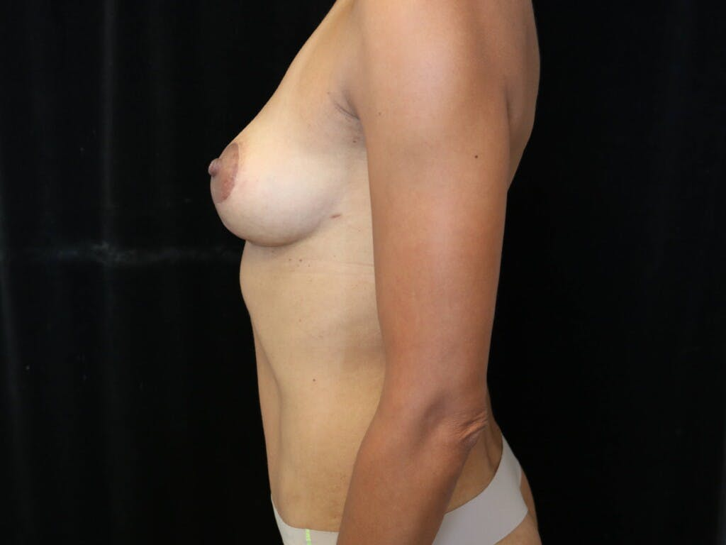 Mommy Makeover Gallery - Patient 39217688 - Image 10