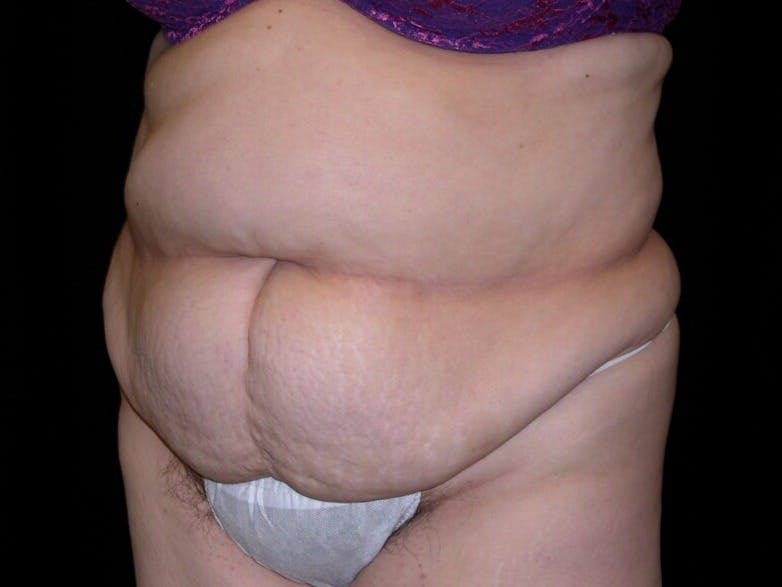 Tummy Tuck Gallery - Patient 39217691 - Image 3