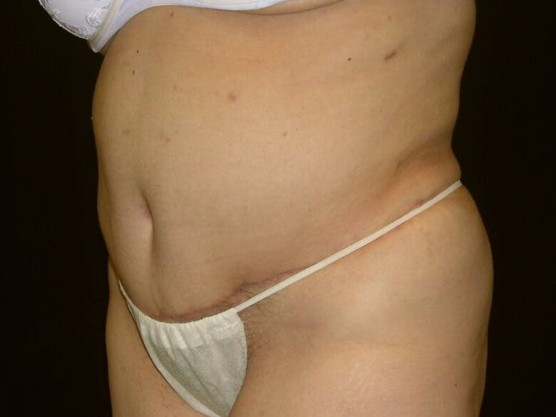 Tummy Tuck Gallery - Patient 39217691 - Image 4