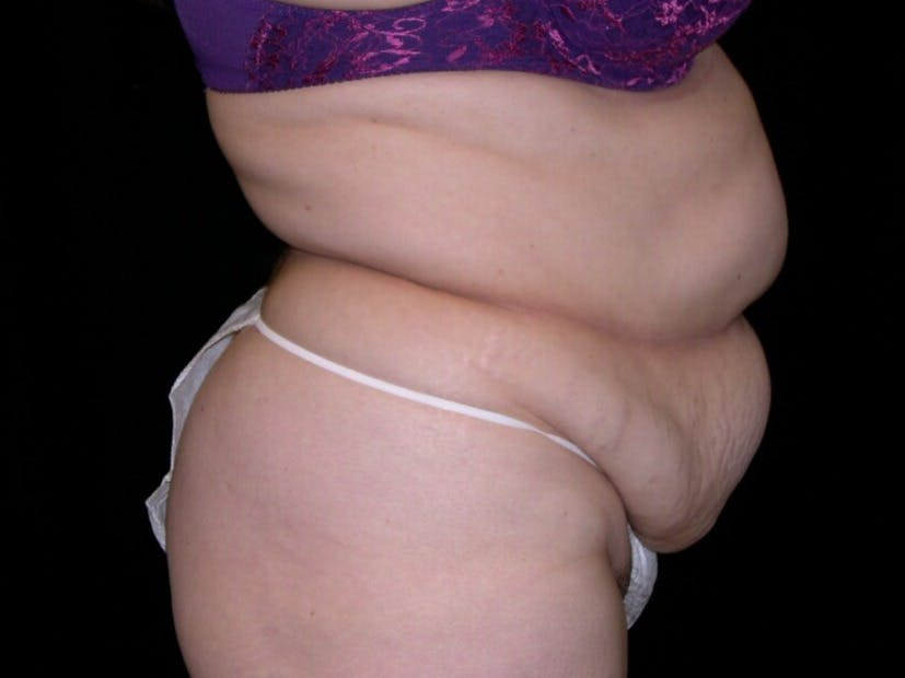 Tummy Tuck Gallery - Patient 39217691 - Image 5