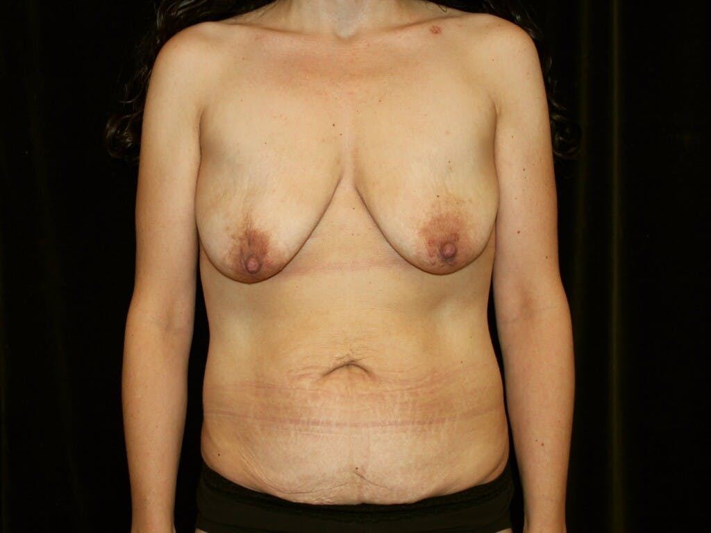 Mommy Makeover Gallery - Patient 39217694 - Image 1