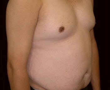 Liposuction Gallery - Patient 39217692 - Image 1
