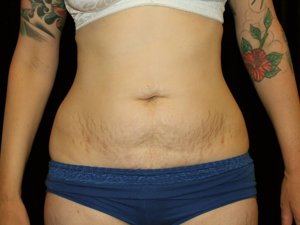 Tummy Tuck Gallery - Patient 39226128 - Image 1