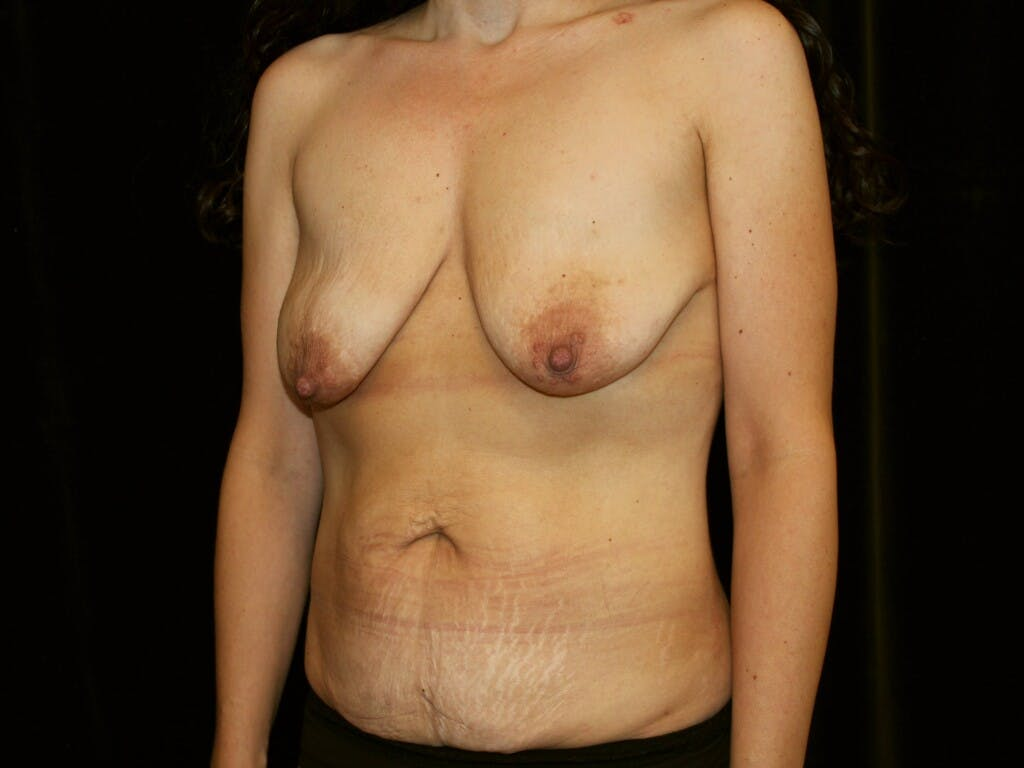 Mommy Makeover Gallery - Patient 39217694 - Image 7