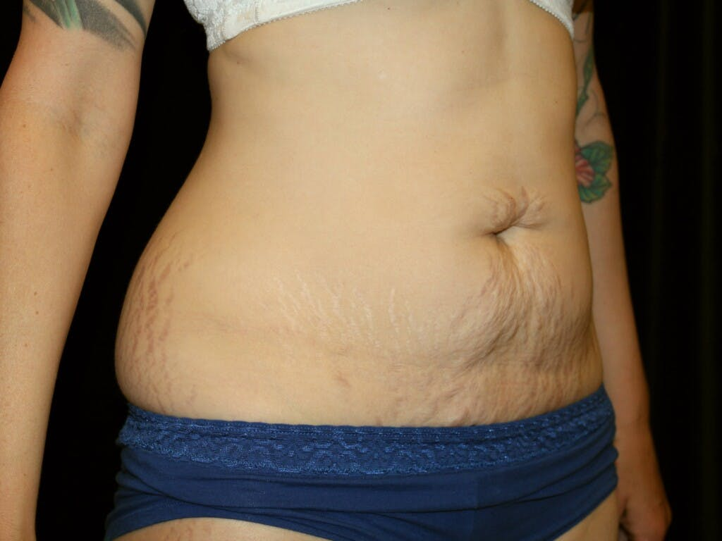 Tummy Tuck Gallery - Patient 39226128 - Image 3