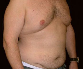 Liposuction Gallery - Patient 39217693 - Image 1