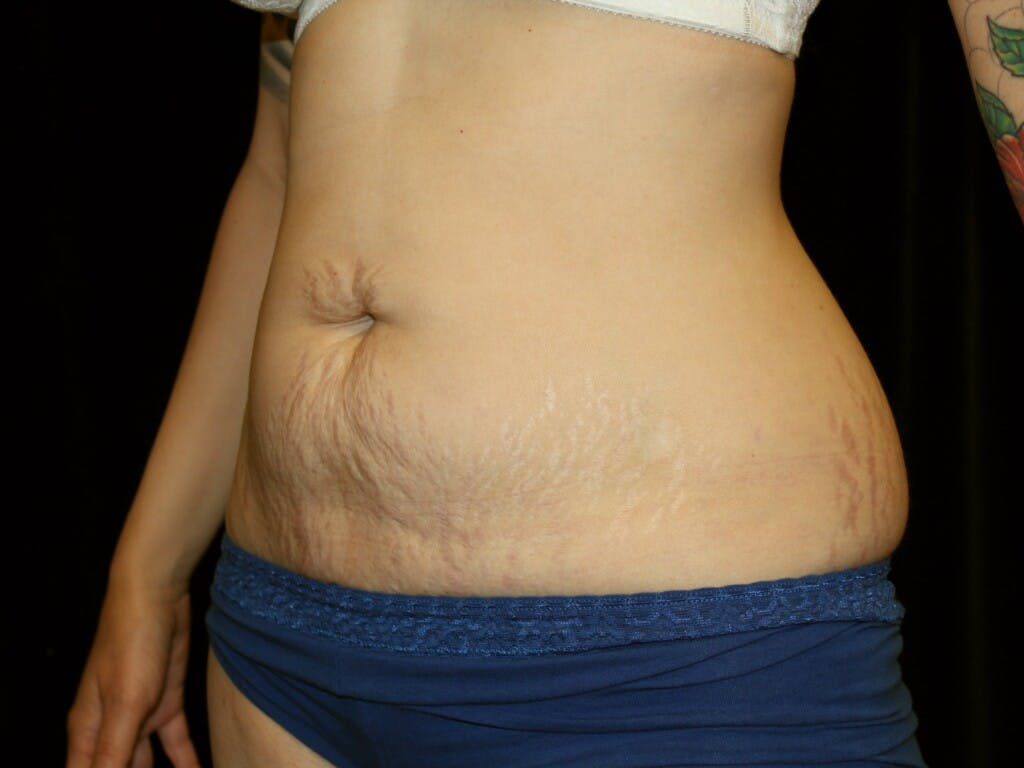 Tummy Tuck Gallery - Patient 39226128 - Image 5