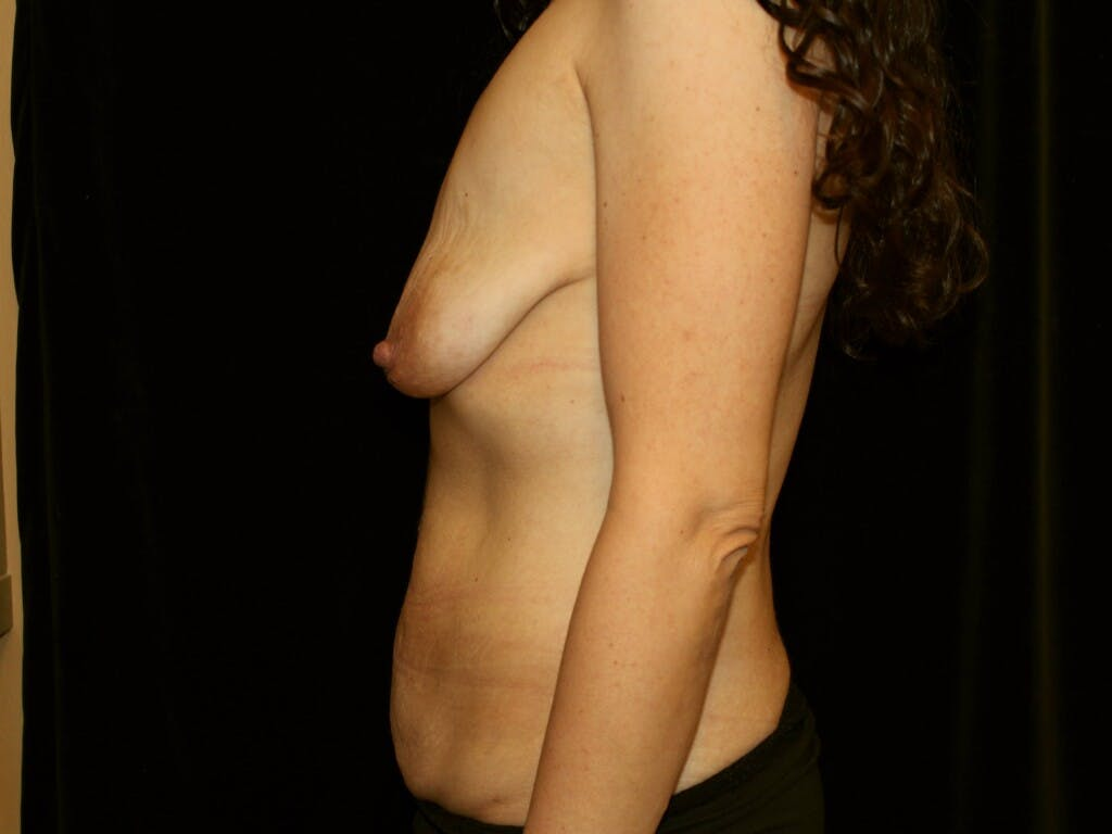 Mommy Makeover Gallery - Patient 39217694 - Image 9