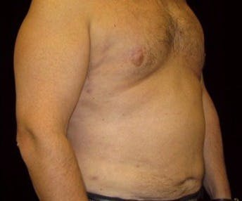 Liposuction Gallery - Patient 39217693 - Image 2