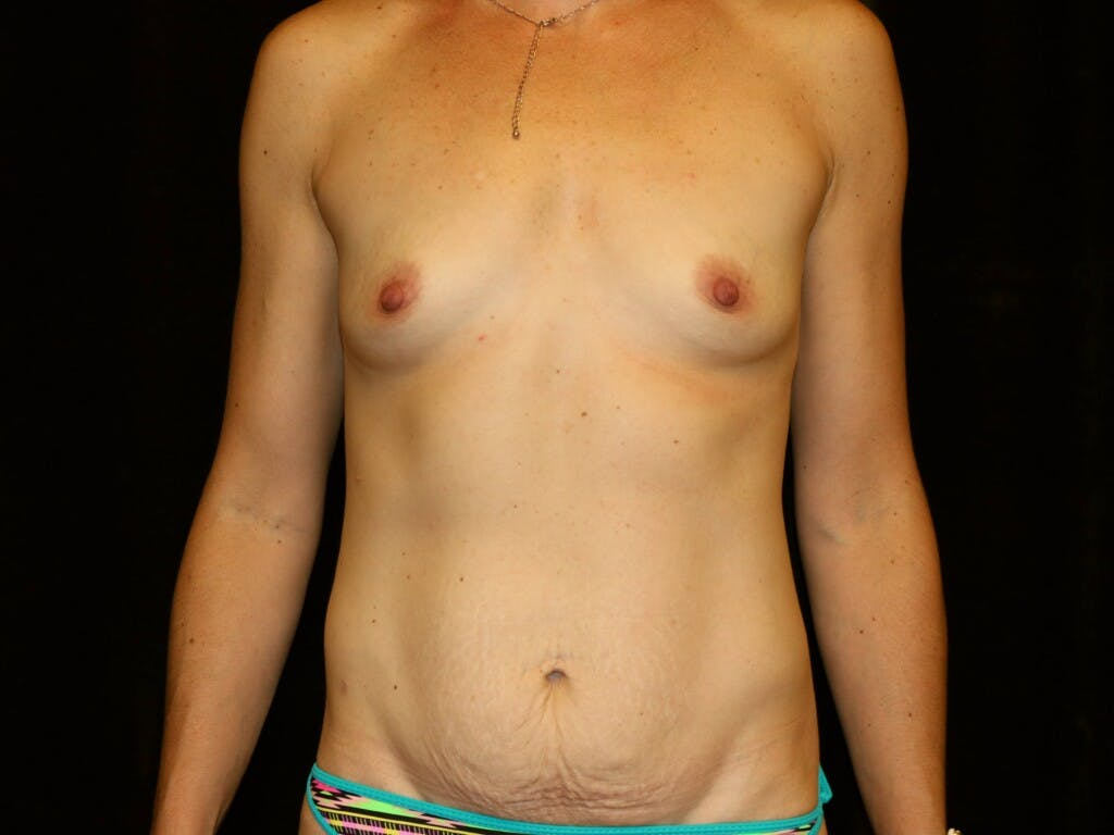 Mommy Makeover Gallery - Patient 39226142 - Image 1