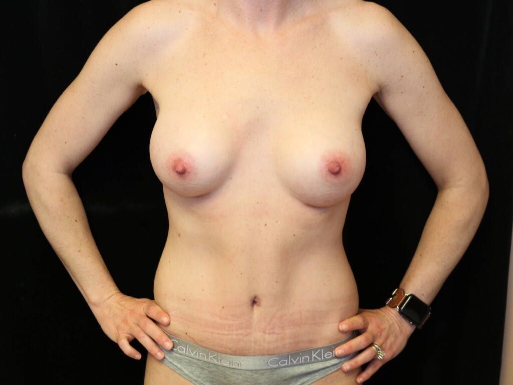 Mommy Makeover Gallery - Patient 39226142 - Image 2