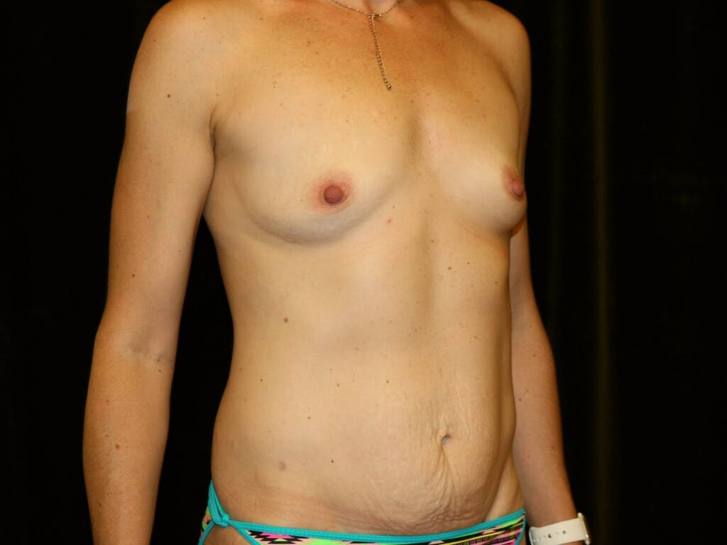 Mommy Makeover Gallery - Patient 39226142 - Image 3