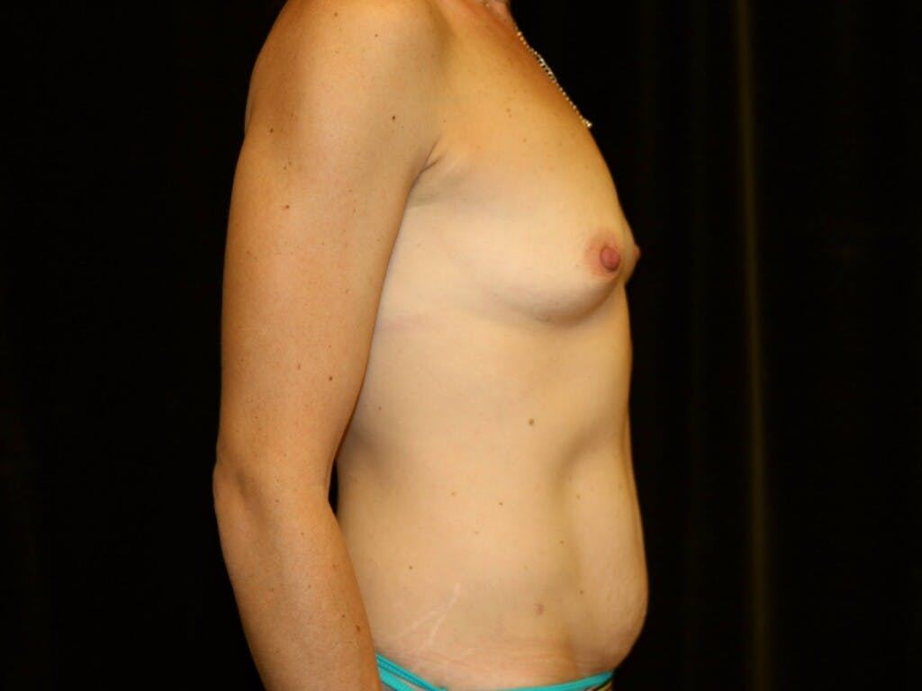Mommy Makeover Gallery - Patient 39226142 - Image 5