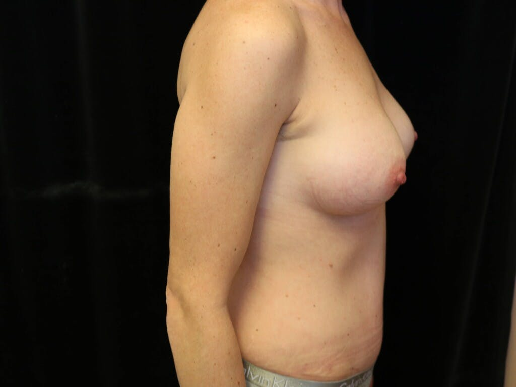 Mommy Makeover Gallery - Patient 39226142 - Image 6