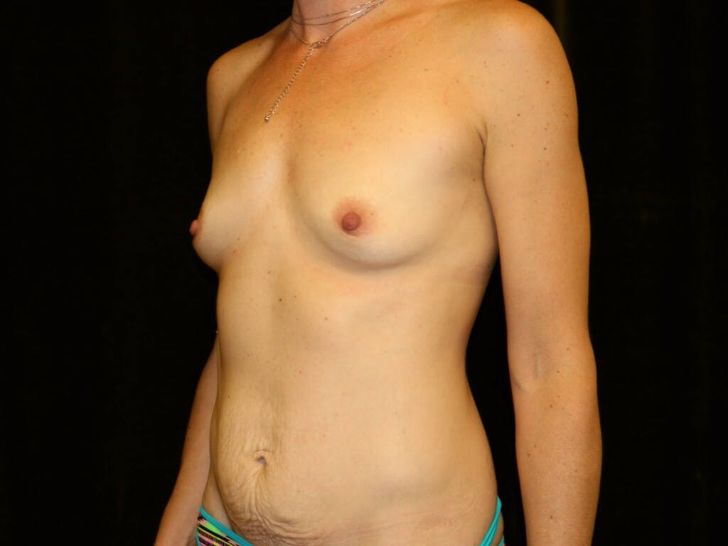 Mommy Makeover Gallery - Patient 39226142 - Image 7