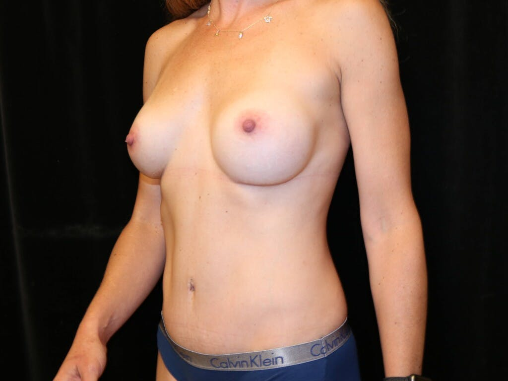 Mommy Makeover Gallery - Patient 39226142 - Image 8