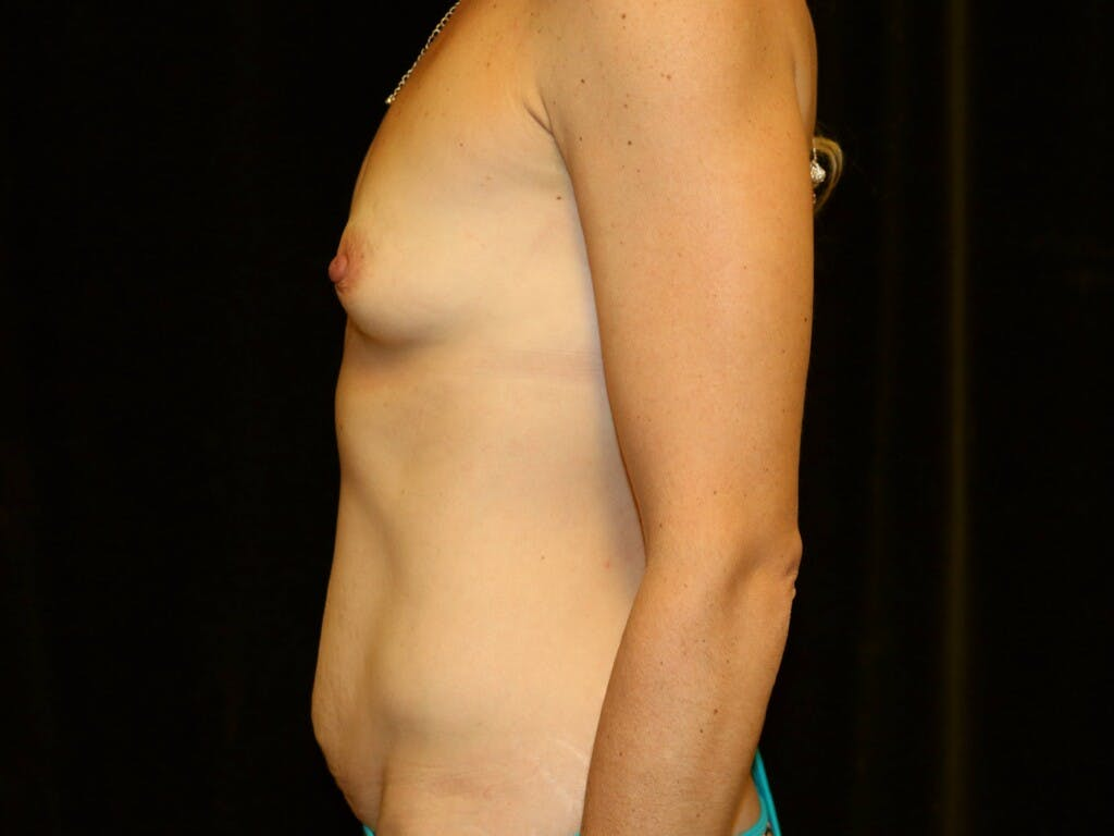 Mommy Makeover Gallery - Patient 39226142 - Image 9
