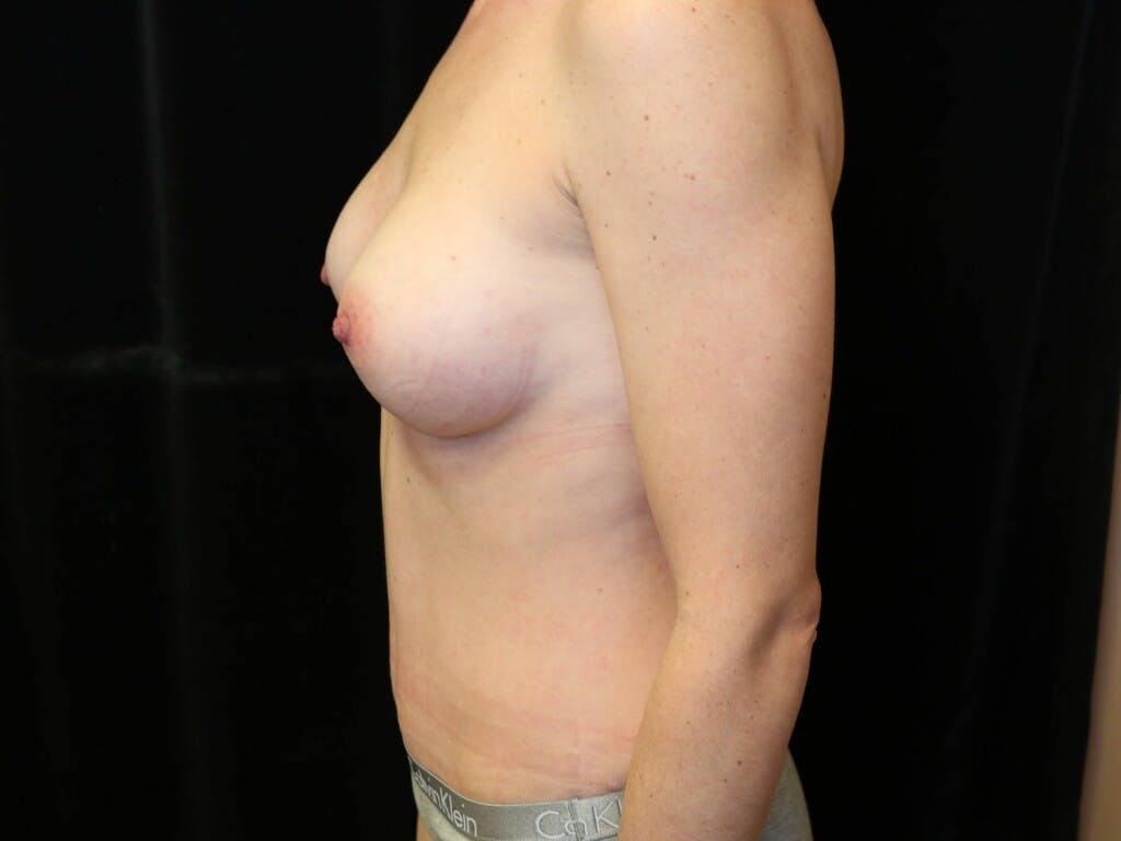 Mommy Makeover Gallery - Patient 39226142 - Image 10