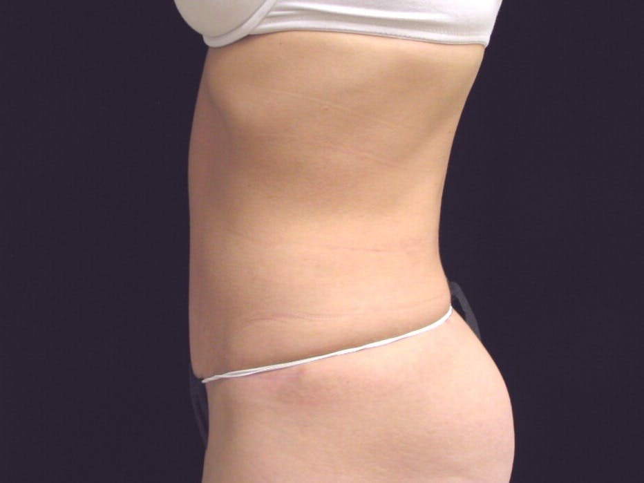 Tummy Tuck Gallery - Patient 39226143 - Image 10