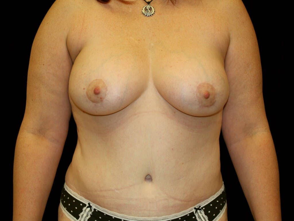 Mommy Makeover Gallery - Patient 39226146 - Image 2
