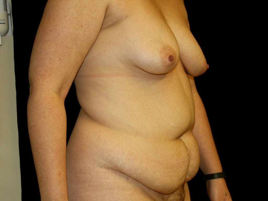 Mommy Makeover Gallery - Patient 39226146 - Image 3
