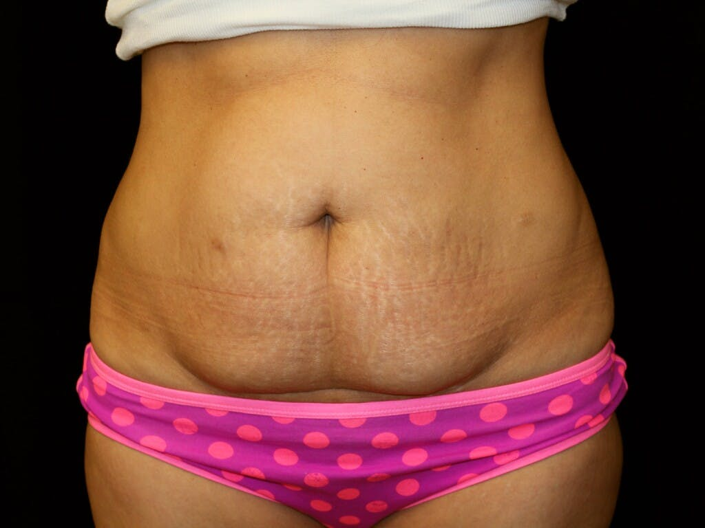 Tummy Tuck Gallery - Patient 39226148 - Image 1