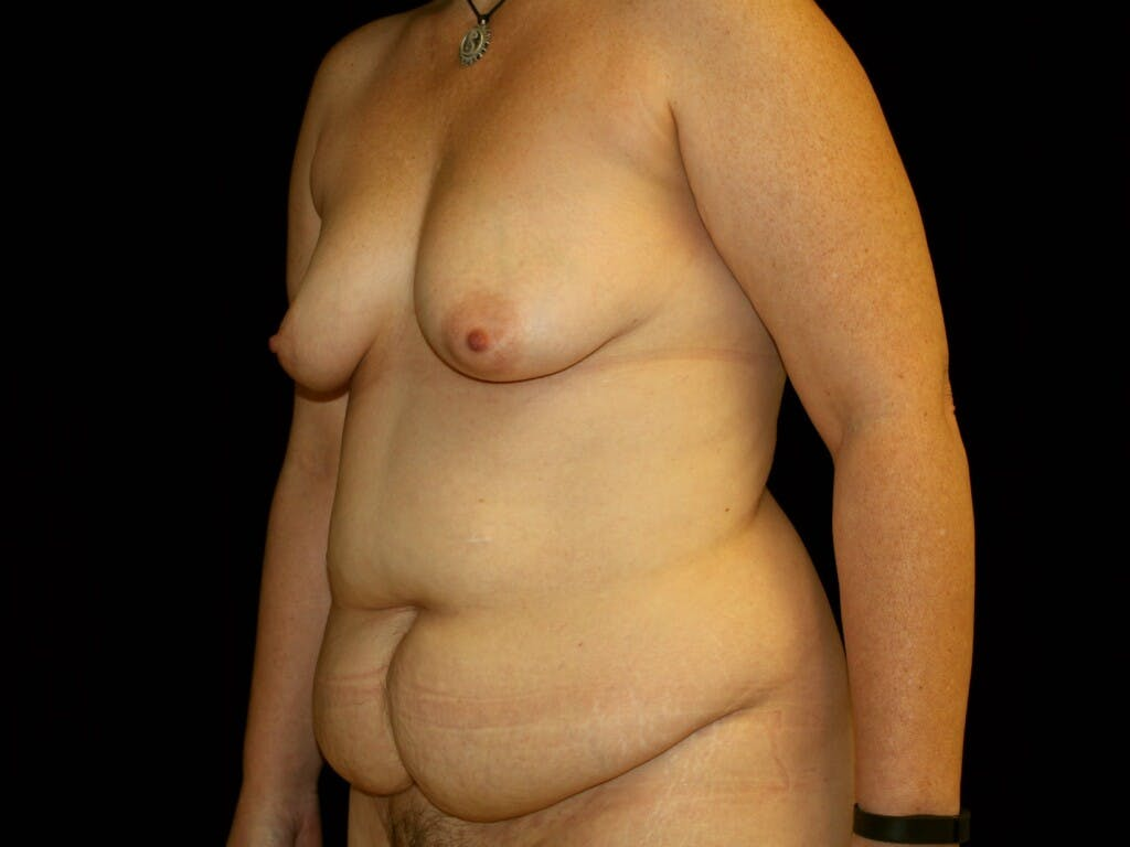 Mommy Makeover Gallery - Patient 39226146 - Image 7