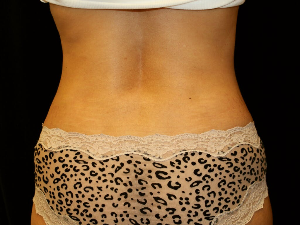 Liposuction Gallery - Patient 39226147 - Image 2