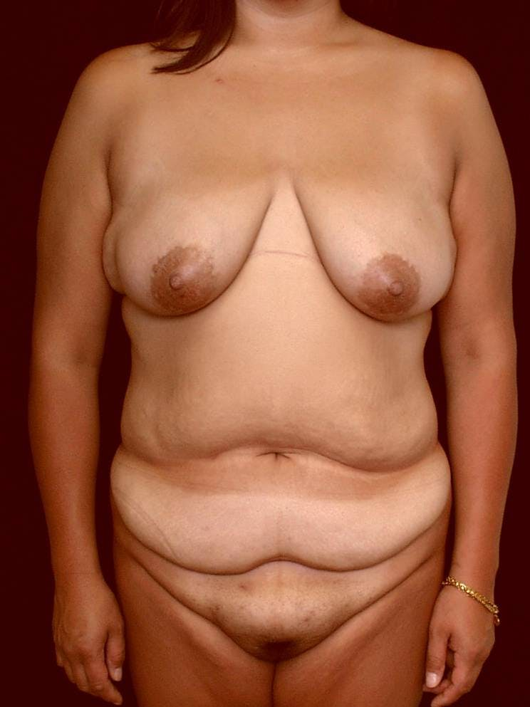 Mommy Makeover Gallery - Patient 39226149 - Image 1