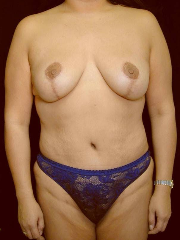 Mommy Makeover Gallery - Patient 39226149 - Image 2