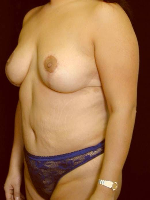 Mommy Makeover Gallery - Patient 39226149 - Image 4