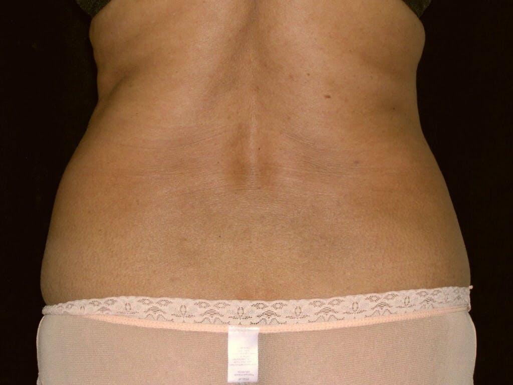 Liposuction Gallery - Patient 39226150 - Image 1