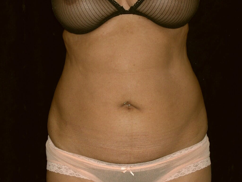Tummy Tuck Gallery - Patient 39226153 - Image 1
